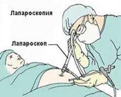 Употребление спиртного до и после операции