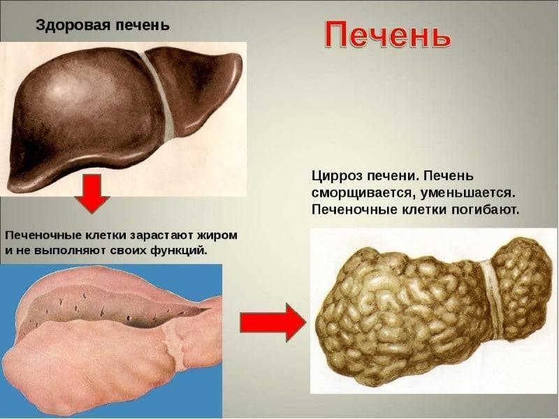 Болит печень после алкоголя: причины, симптомы, первая помощь