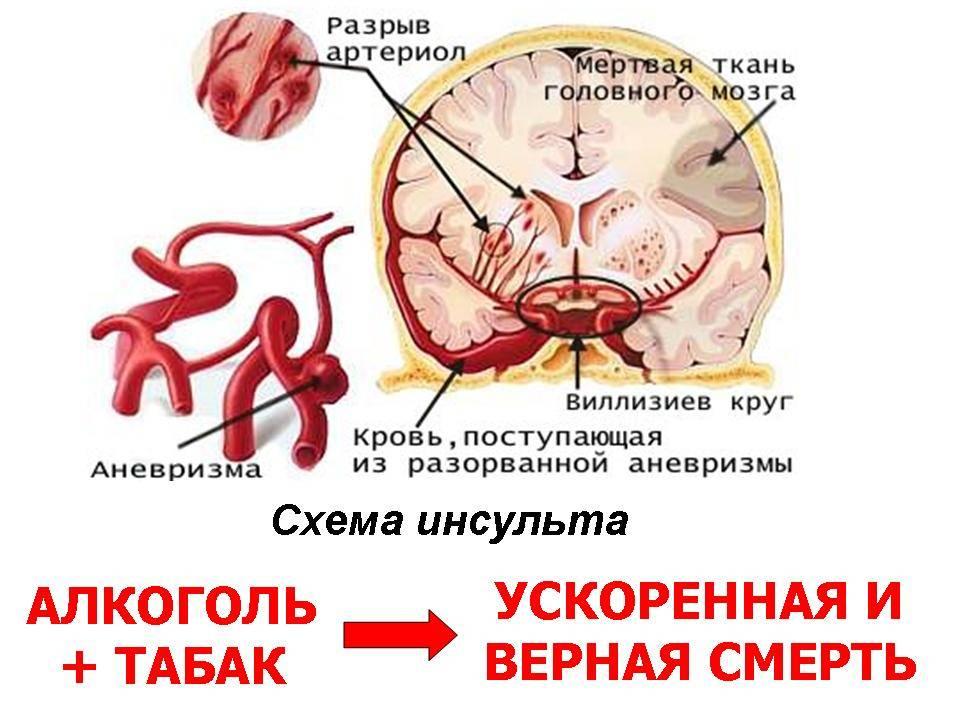 Как влияет никотин на мозг человека, что происходит с мозгом при курении