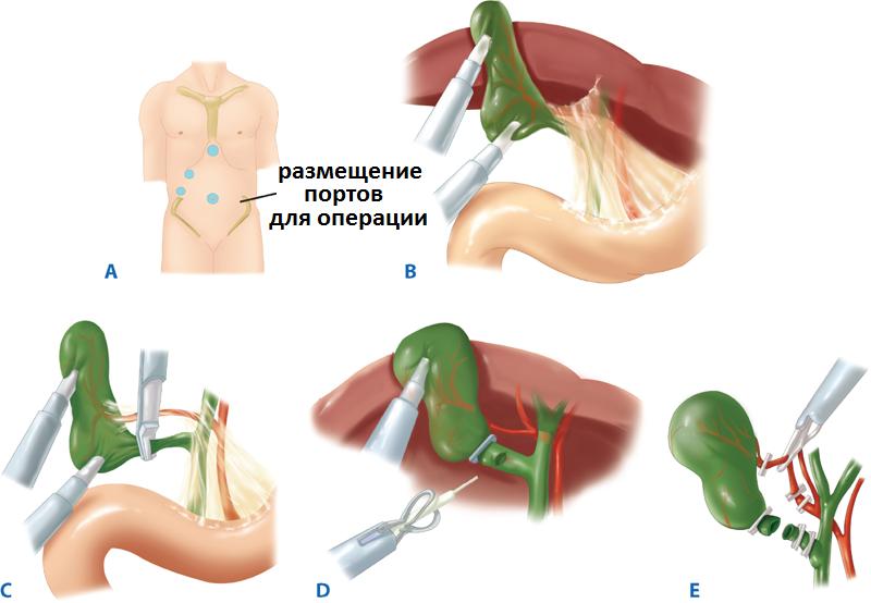 После лапароскопии маточных труб: какие выделения, советы по диете