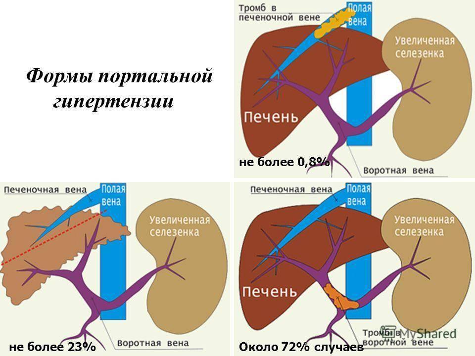 Портальная гипертензия при циррозе печени: симптомы и лечение - всё о склерозе