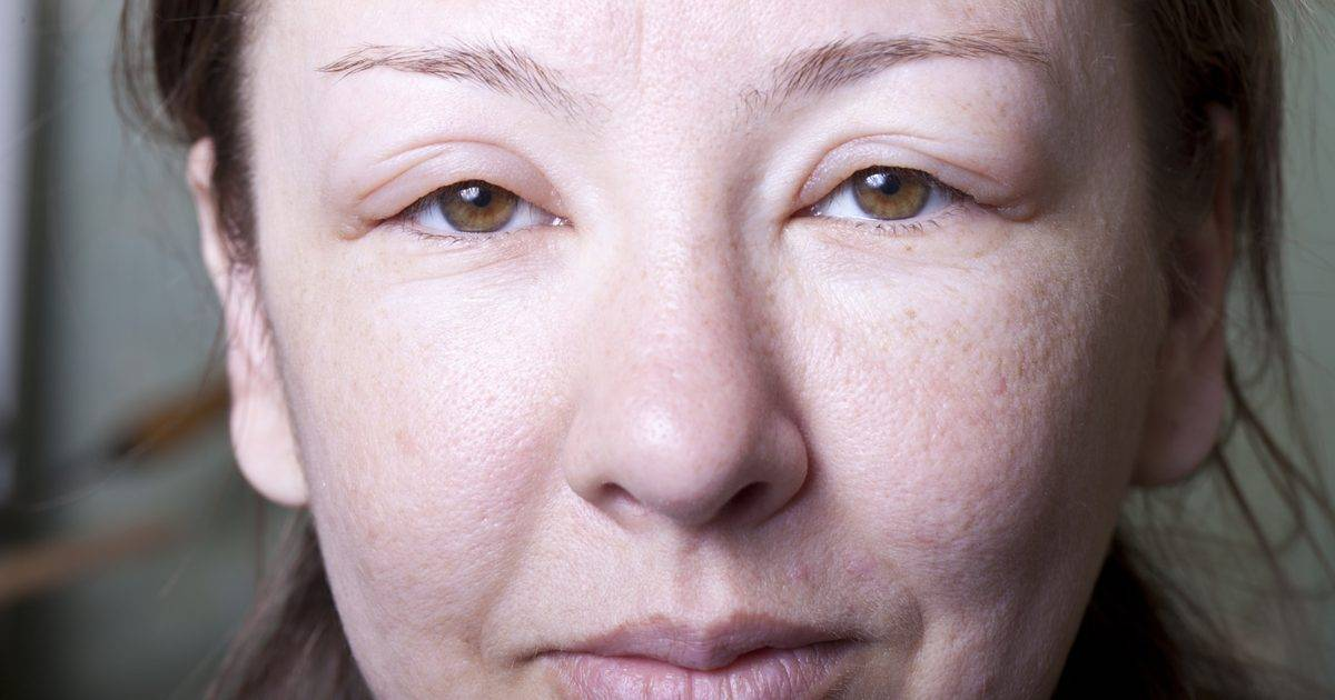 Проблемная кожа лица: какие средства, какой уход и какое лечение самые эффективные?