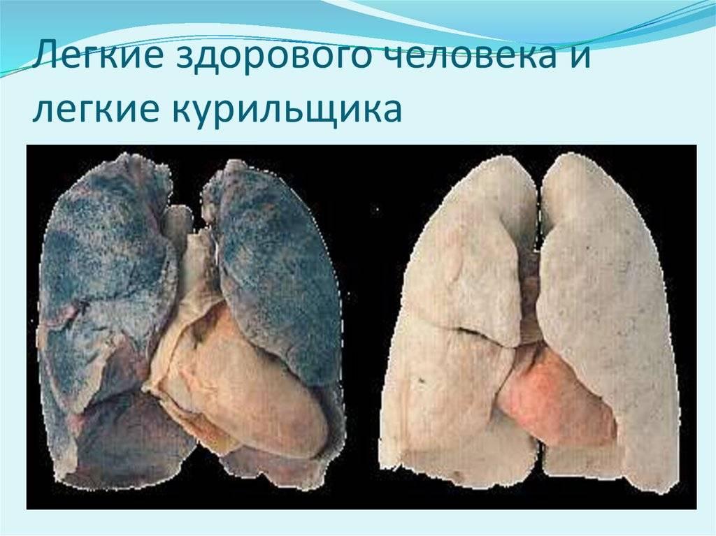Как курение табака влияет на органы дыхания и какие заболевания дыхательной системы вызывает?