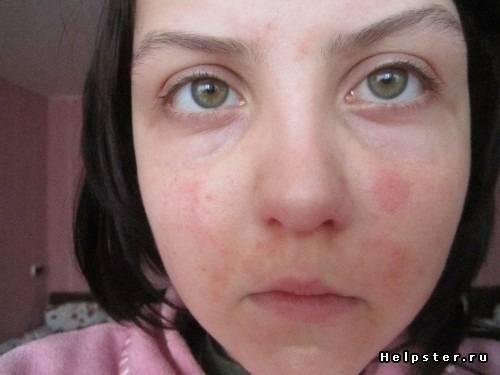 Краснеет лицо и тело от алкоголя: причины, отзывы, что делать, чтобы лицо не краснело?