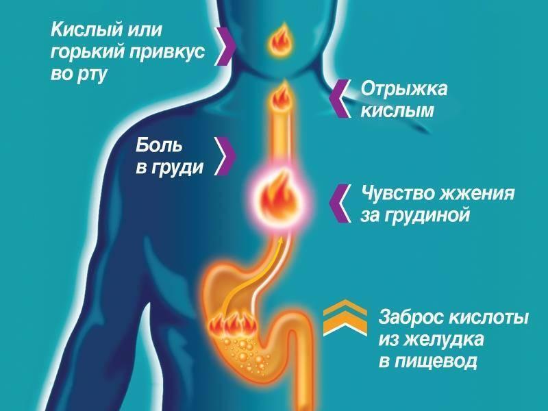 Изжога по ночам: причины и лечение ночной изжоги