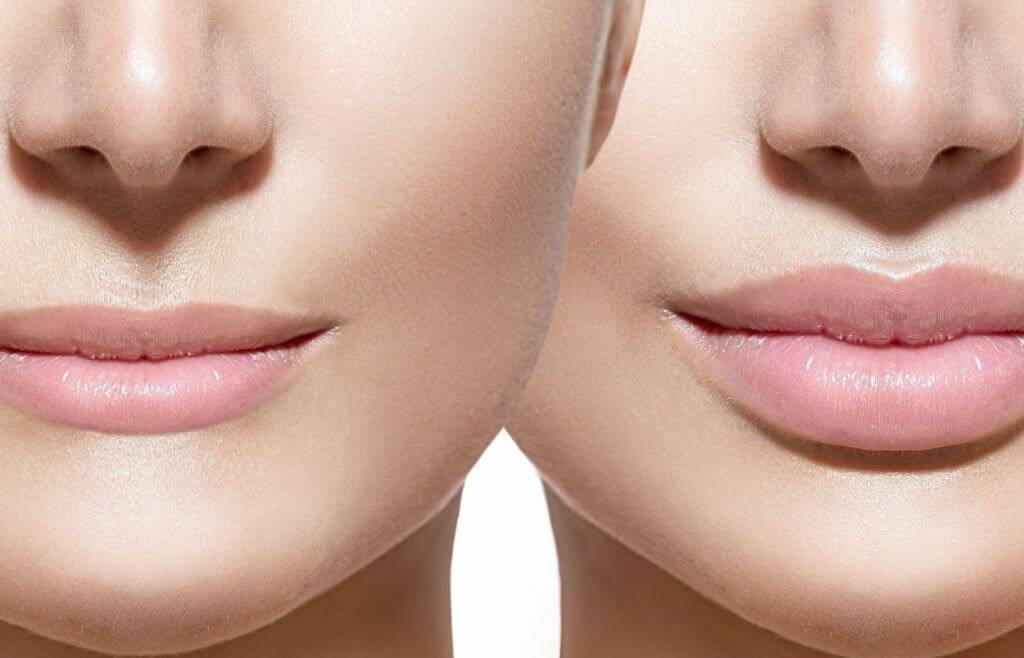 Можно ли курить после увеличения губ