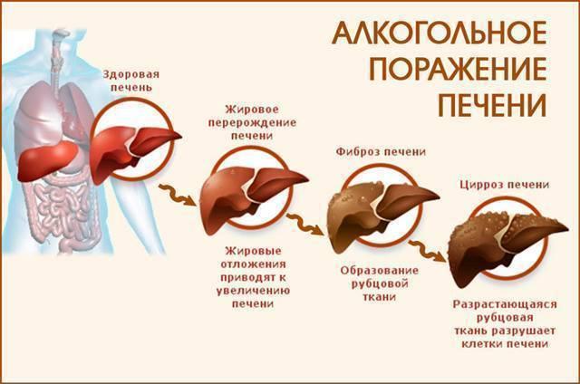 Алкогольный гепатоз печени: симптомы и лечение