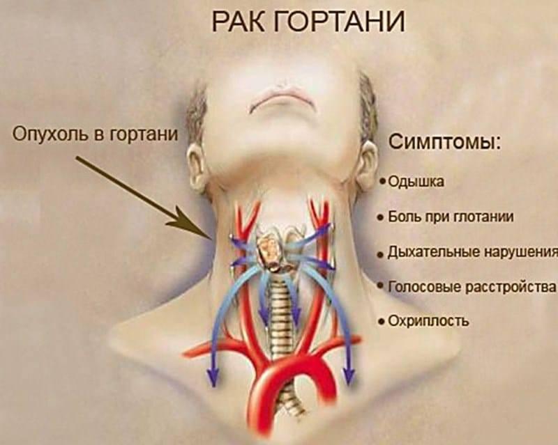 Как быстро избавиться от першения в горле в домашних условиях. першит в горле —, что делать. лечение | здоровье человека