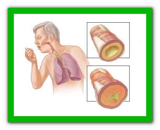 Можно ли курить при бронхите последствия от воздействия никотина, советы курящим