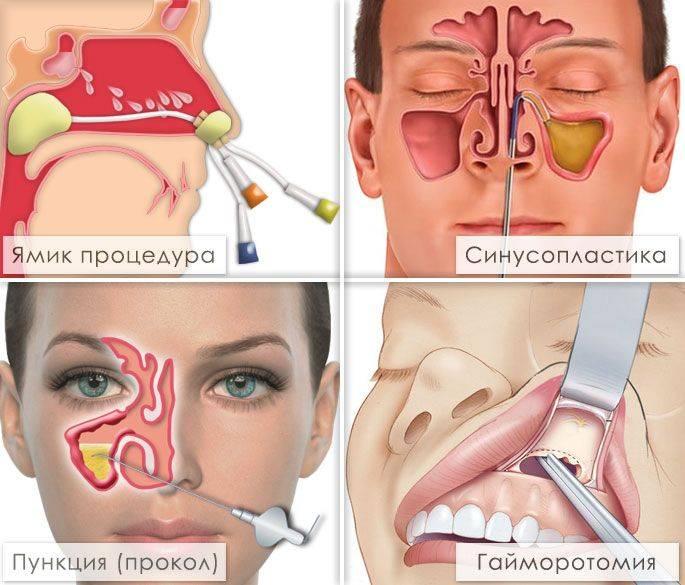 Курение влияет на гайморит
