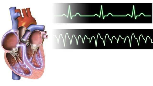 Частое сердцебиение после алкоголя: причины, симптомы, осложнения, лечение | всердце.ком