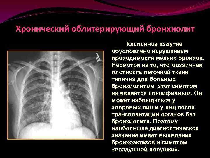 Облитерирующий бронхиолит — википедия. что такое облитерирующий бронхиолит