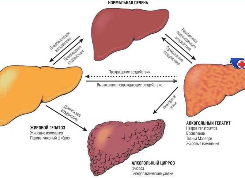 Декомпенсированный цирроз печени: цирроз печени в стадии декомпенсации