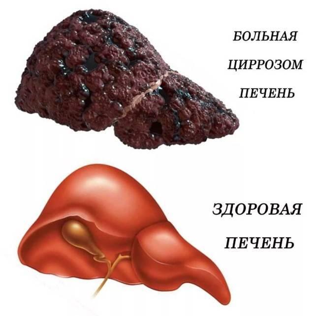 Что такое цирроз печени симптомы фото людей.  симптомы заболевания печени. luchshijlekar.ru