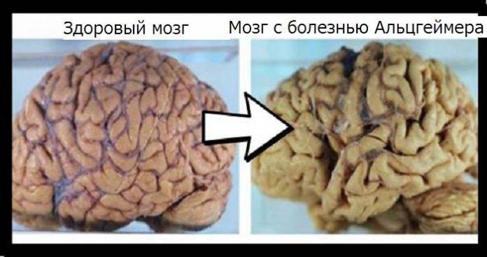 10 способов остановить деградацию мозга | my vitae