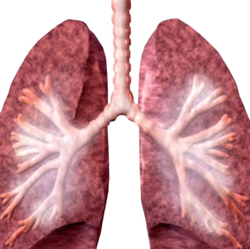 Болезни легких: список заболеваний органов дыхания, симптомы и патология