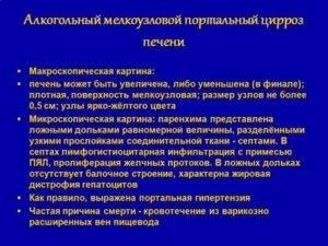 Мелкоузловой цирроз печени что это. цирроз печени. izlechisebya.ru