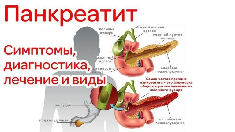 Таблетки при панкреатите поджелудочной железы при обострении. лечение панкреатита лекарствами | здоровье человека