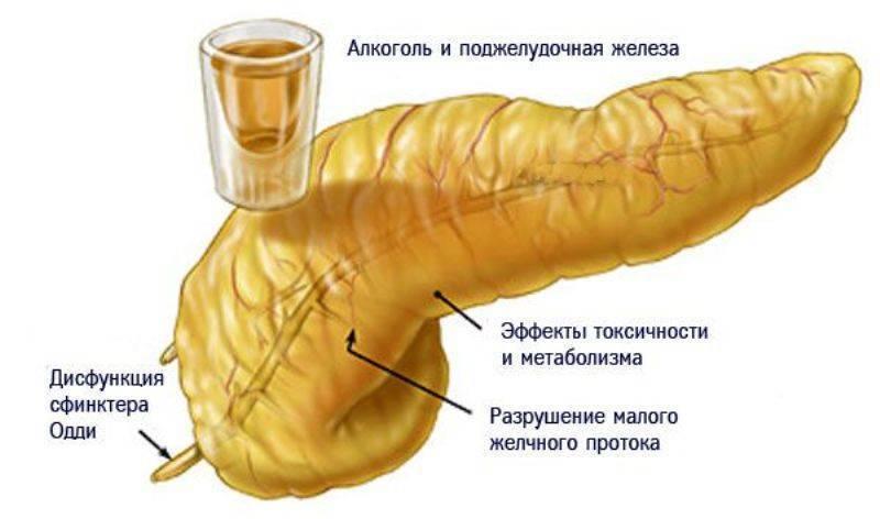 Можно ли алкоголь при панкреатите и в каком количестве?