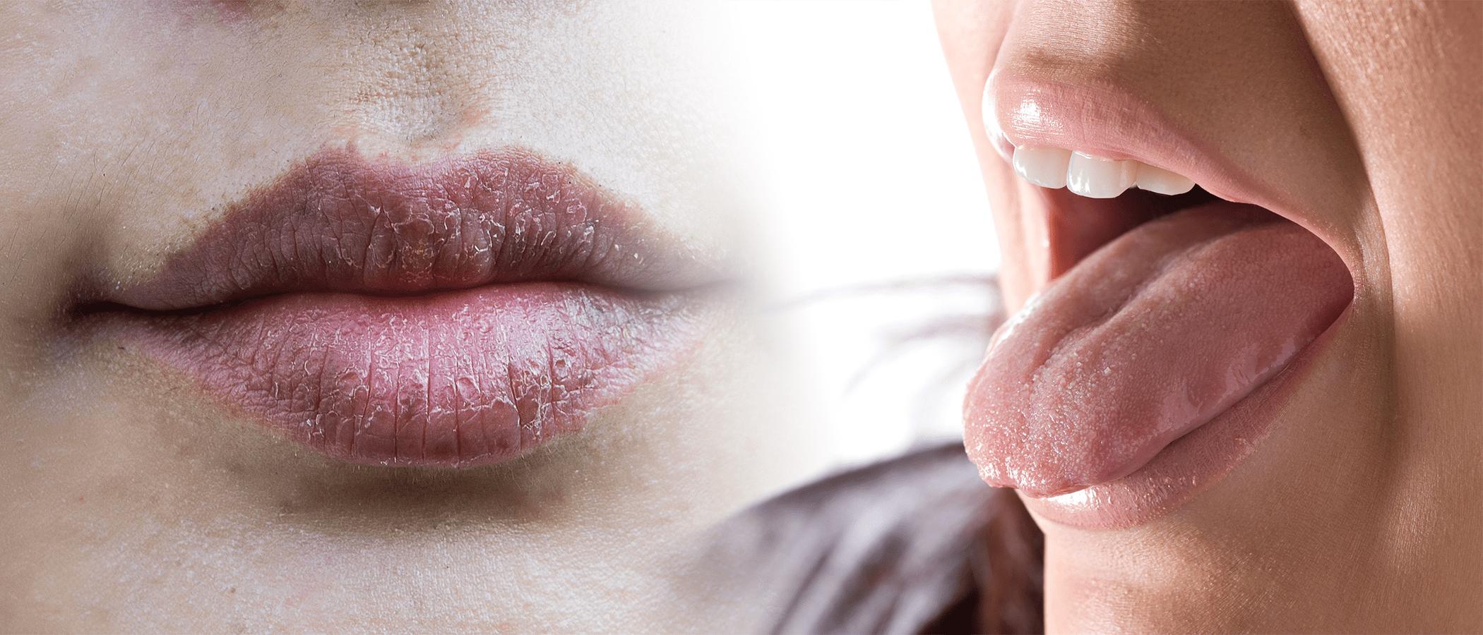 Устранение сухости во рту: 20 эффективных способов избавиться от сухости во рту