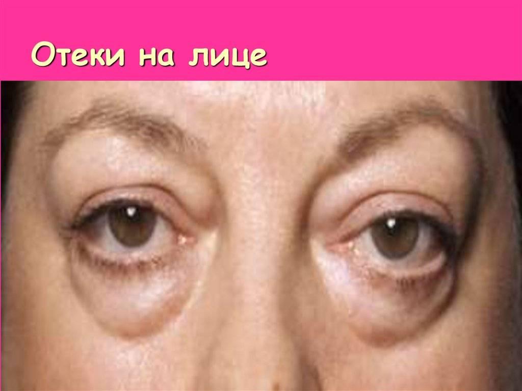 Мешки под глазами от слез