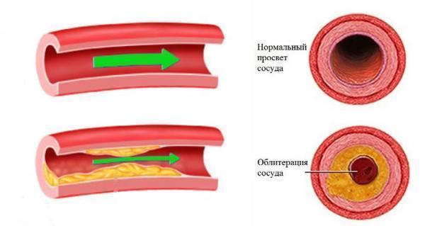Как вредит курение после инсульта