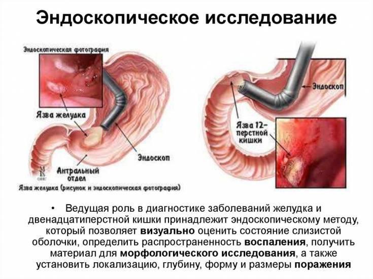 Алкоголь при язве желудка — последствия употребления спиртных напитков при язве желудка, отзывы врачей