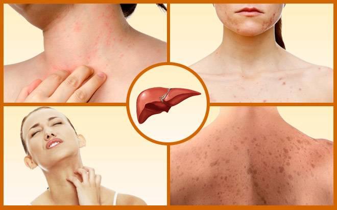 Зуд кожи тела при заболеваниях печени - всё о печени