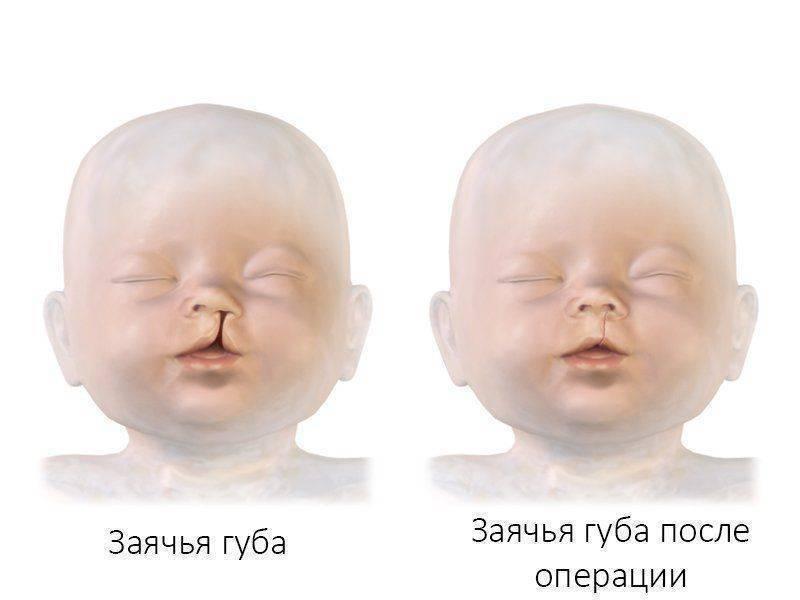 Синдром ребенка от родителей алкоголиков