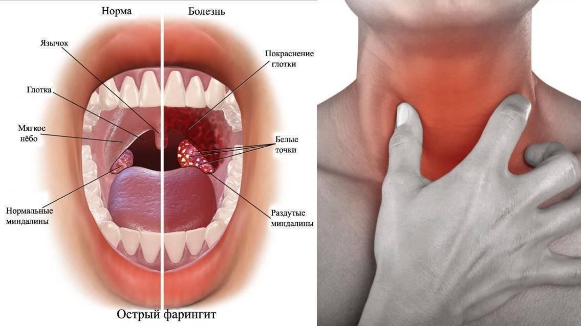Влияние электронной сигареты на горло: почему при парении оно першит и жжет
