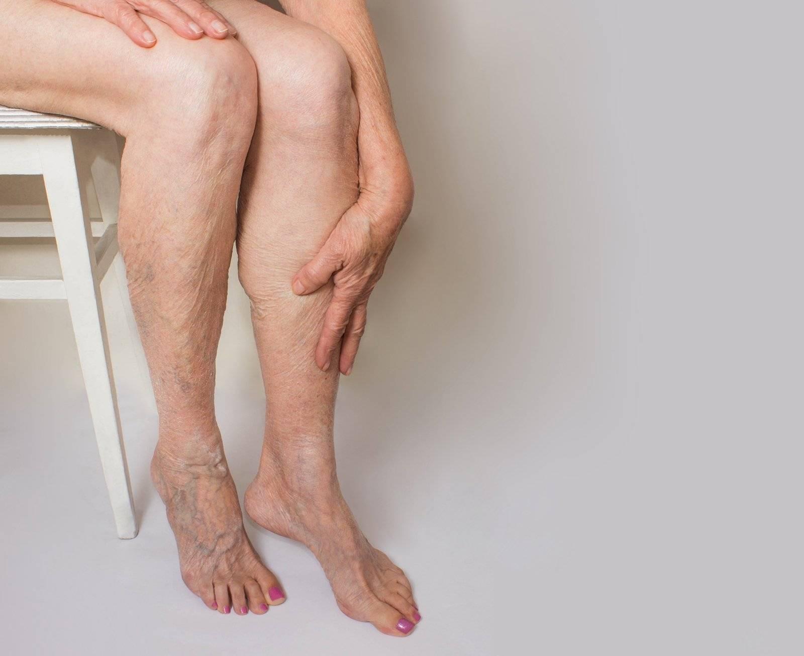 Почему болят ноги после алкоголя на следующий день