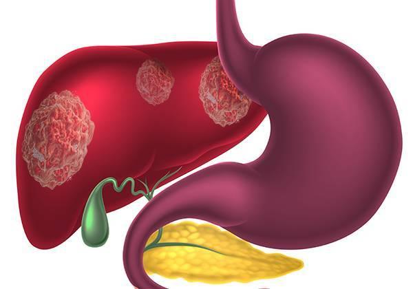 Цирроз печени — это рак или нет?   лечение рака
