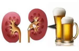 Какой алкоголь можно при мочекаменной болезни - здрав-почки
