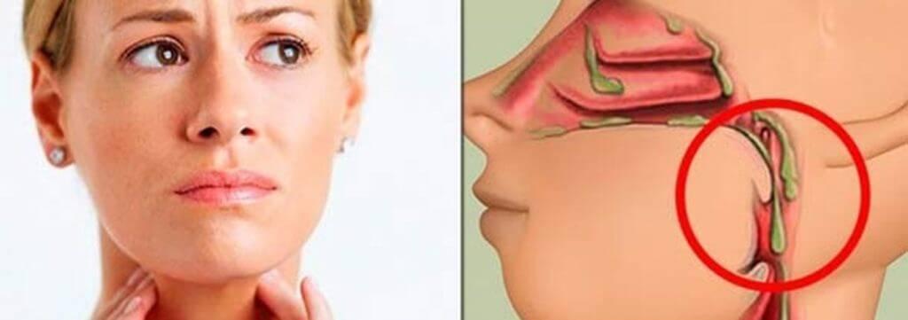 Может ли от iqos болеть горло? ?