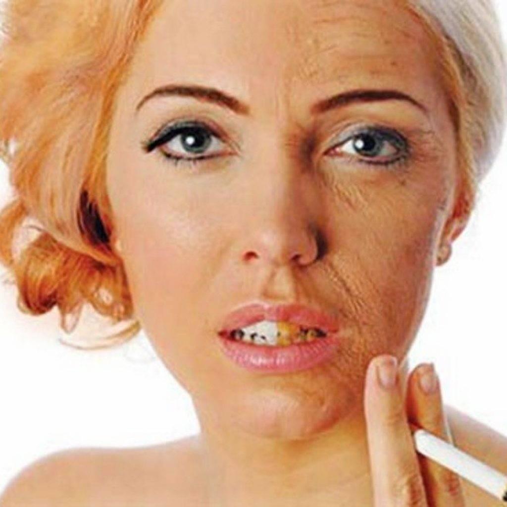Лицо курильщика: как влияет курение на кожу и можно ли восстановить ее после отказа от привычки