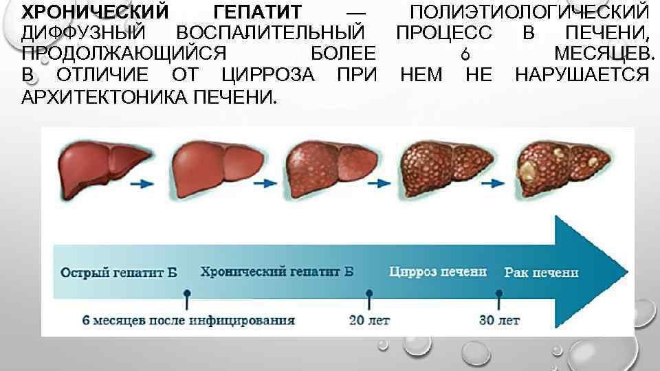 Признаки последней стадии цирроза печени - твоя печенка
