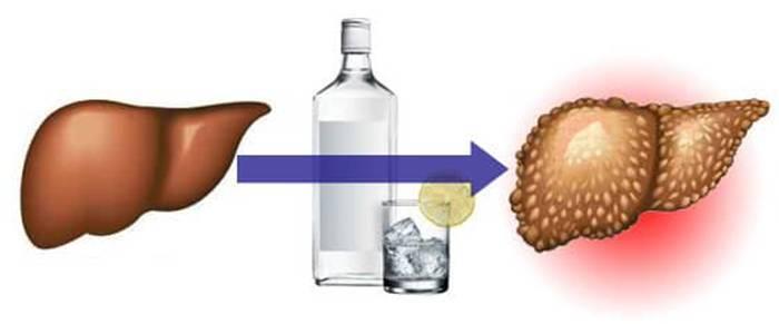 Алкоголь и гепатит с: последствия