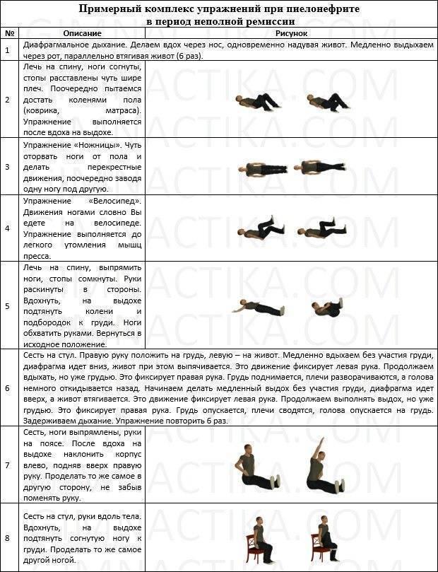 Лечебная физкультура при пиелонефрите: комплексы упражнений и особенности терапии