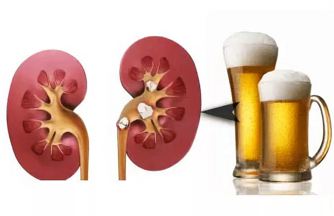 Восстанавливаются ли почки после алкоголя - все про почки