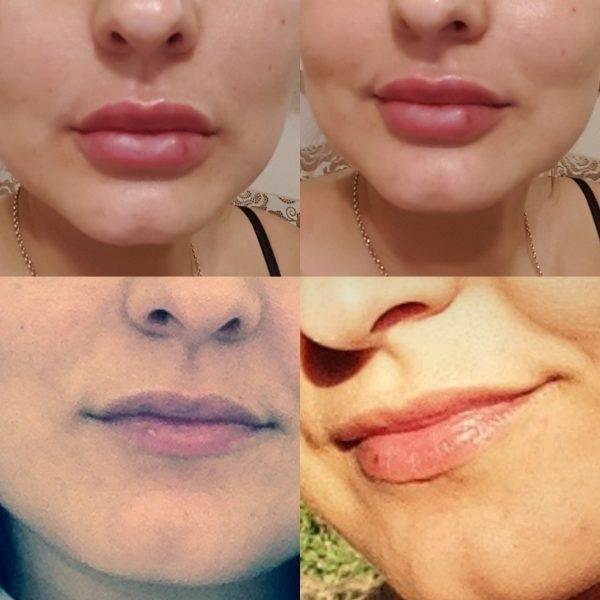 Что нельзя делать после увеличения губ?