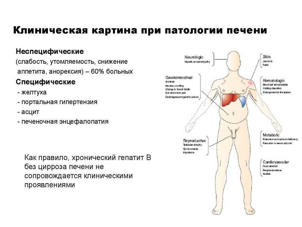 Температура при циррозе печени: причины и лечение