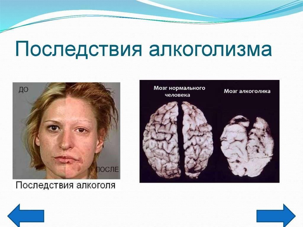Отек мозга при алкоголизме: причины, симптомы, лечение, прогноз и последствия, профилактика