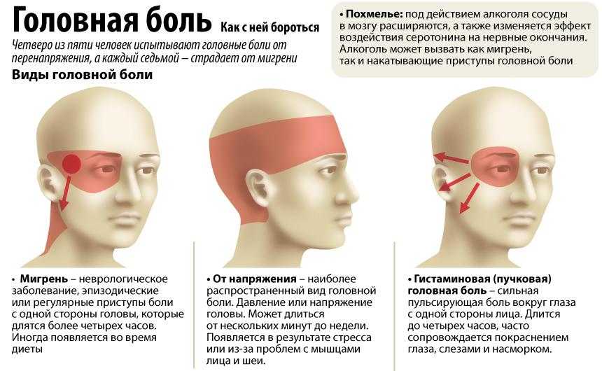 Почему кружится и болит голова после кальяна — отвечает эксперт
