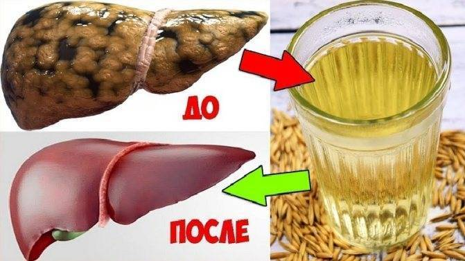 Чем и как можно очистить печень от алкоголя