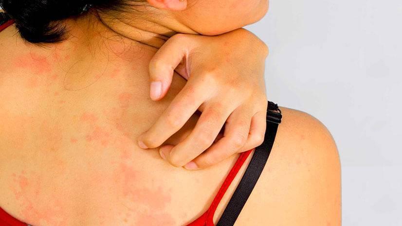 Зуд кожи тела при заболеваниях печени, причины, признаки