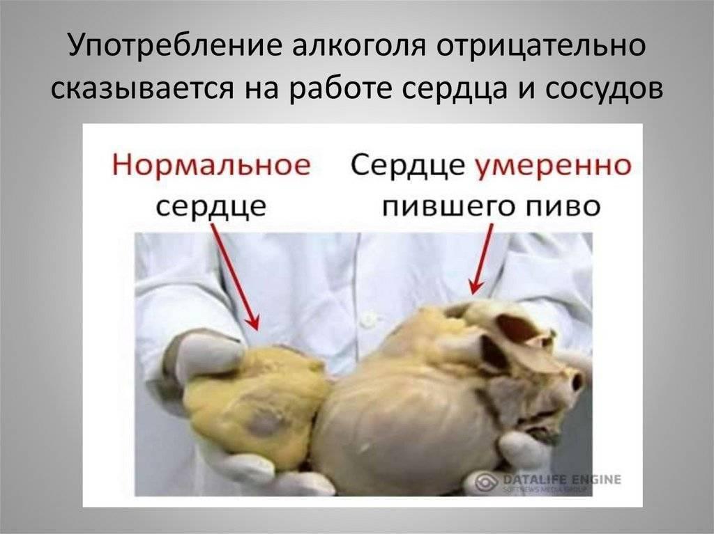 Пивное сердце симптомы лечение - лучшие рецепты от gemrestoran.ru