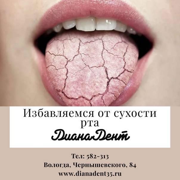 Сушит во рту с похмелья: как устранить сушняк после алкоголя