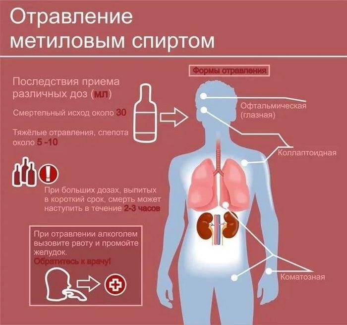 Этиловый и метиловый спирт - симптомы и признаки отравления спиртом