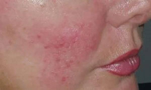 Аллергия на алкоголь: красные пятна на лице и теле