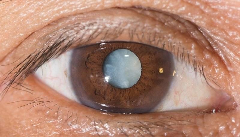 Катаракта: симптомы, причины возникновения, методы лечения и профилактика